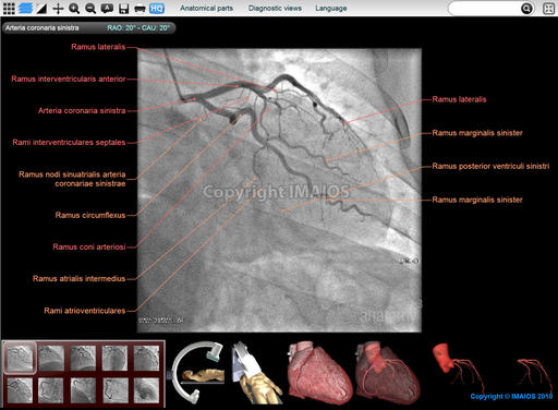 Coronary angiography : Coronary arteries - Anatomy