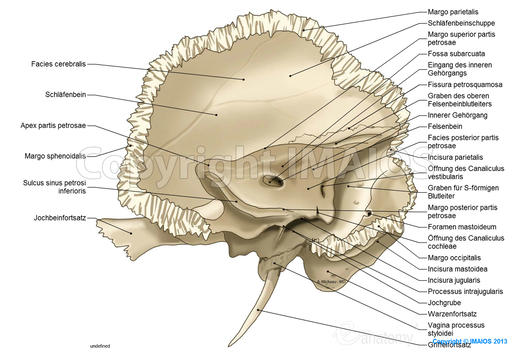 Temporal bone: Petrous part, Mastoid process,  Internal acoustic opening, Jugular fossa, Styloid process