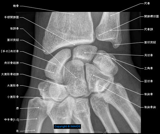 Anatomy atlas - Radiography - Wrist  : Scaphoid,  Tubercle,  Lunate,  Triquetrum,  Pisiform,  Trapezium,  Tubercle,  Trapezoid,  Capitate,  Hamate, Distal radioulnar joint, Wrist joint, Carpal joints; Intercarpal joints, Midcarpal joint, Pisiform joint, Carpometacarpal joints